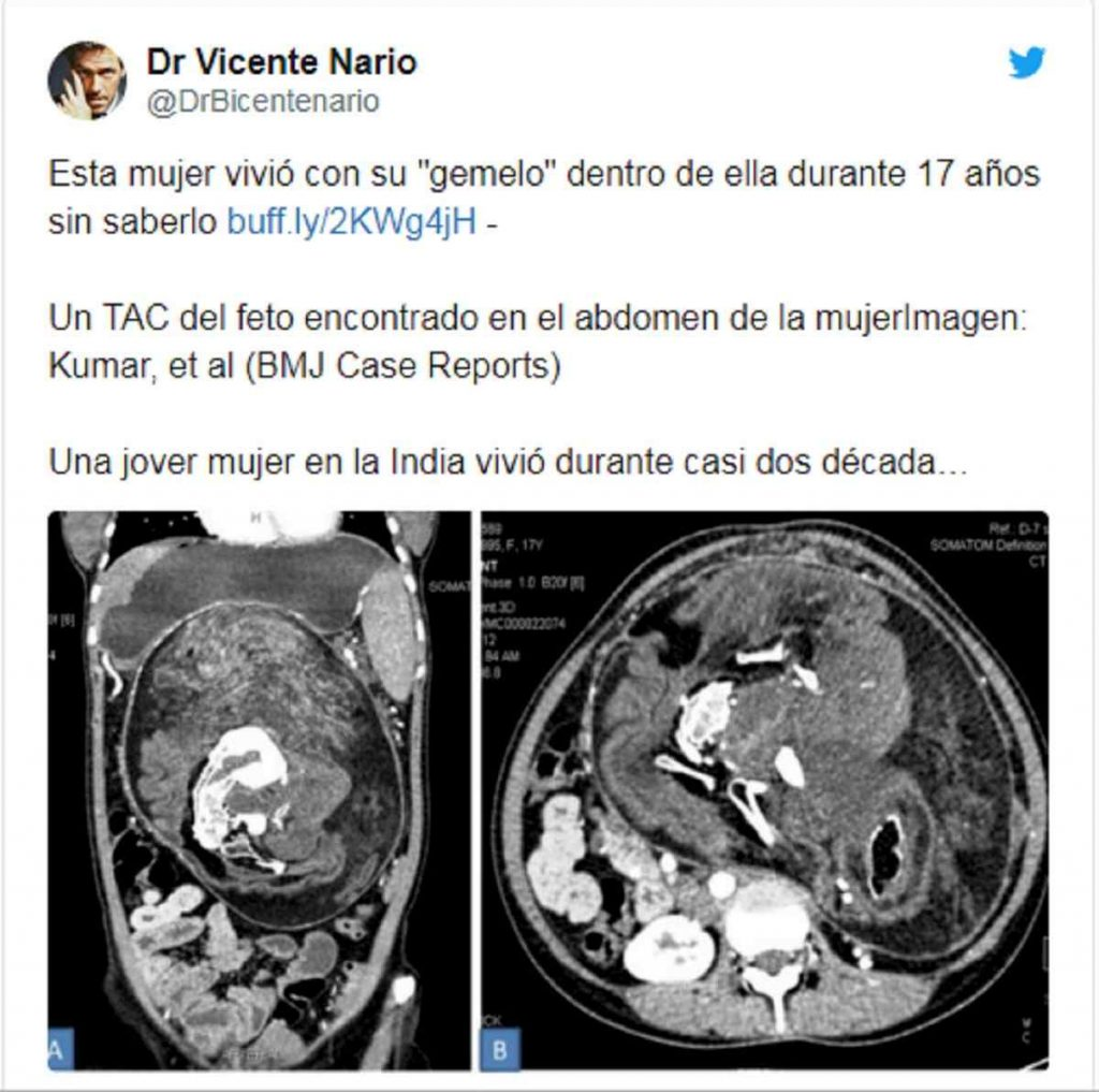 Il post pubblicato dal Bmj Case Reports