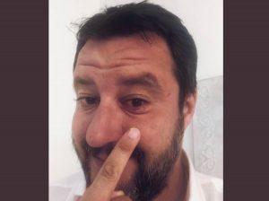 Salvini, l'orzaiolo e la replica di Burioni