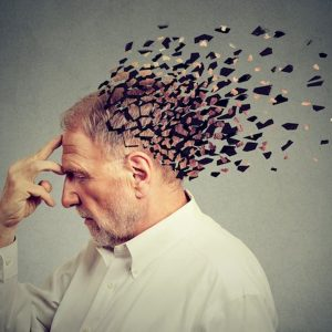 Alzheimer, un trattamento che elimina le cellule prodotte dal sistema immunitario potrebbe bloccarlo