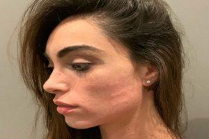 """Verissimo, Lorella Boccia racconta l'aggressione: """"Mi hanno schiaffeggiato..."""""""