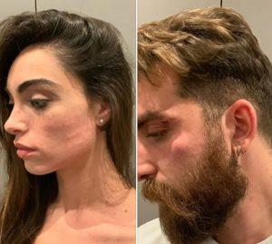 Lorella Boccia, la ballerina di Amici e il marito minacciati con un coltello, derubati e aggrediti