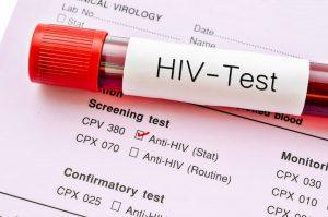 Aids, in calo i nuovi casi di HIV: nel 2018 sono stati il 20% in meno
