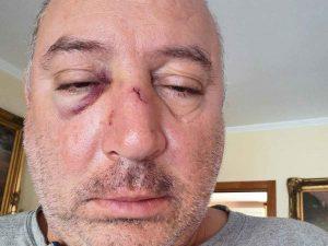 Foggia, in 4 pestano consigliere Massimiliano Di Fonso: aveva rimproverato un uomo che gettava rifiuti in strada