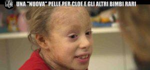 """Ittiosi, la malattia rara della pelle. La storia di Cloe: """"In inverno rischio l'ipotermia"""""""