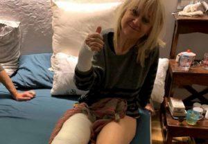Luciana Littizzetto, foto col gesso postata su Instagram: rotula e polso rotti
