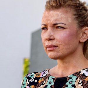 Modena, ex modella sfigurata dopo un intervento sarà risarcita