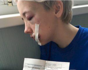 """Russia, ragazza aggredita a San Pietroburgo: """"Sembrava lesbica"""""""