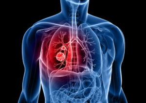 Tumore polmone, molecola per combattere il tipo che non risponde ai farmaci