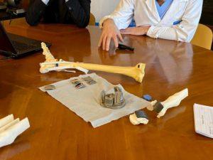 Bologna, intera caviglia ricostruita in 3D: è la prima volta al mondo