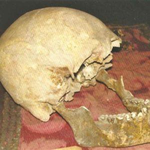 Plinio il Vecchio, forse è suo il cranio ritrovato all'Accademia di Arte Sanitaria