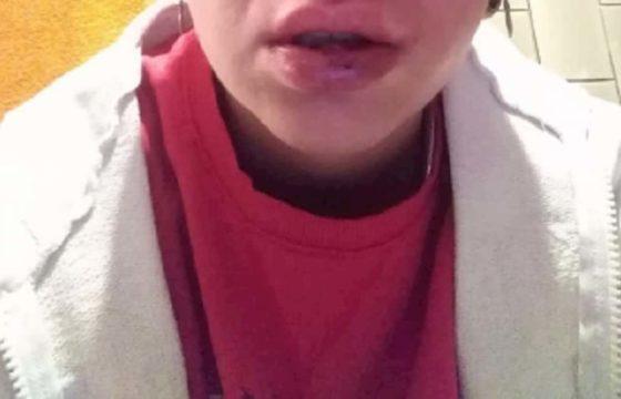 """Giulia Ventura, lesbica picchiata per strada a Potenza all'urlo di: """"Vuoi vedere come le prendono i maschi?"""""""