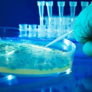 Infarto, svelata complicità del batterio Escherichia coli. La scoperta italiana