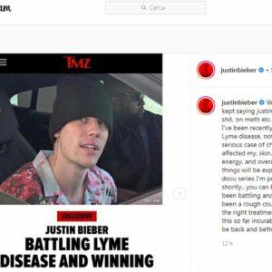 """Justin Bieber ha la malattia di Lyme: """"Non ero drogato, ho passato mesi difficili"""""""