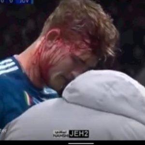 Lione-Juventus, De Ligt: sangue e fasciatura dopo colpo alla testa