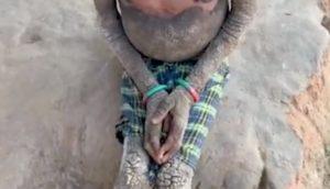"""Ittiosi epidermolitica, il caso della bambina indiana con il corpo che si sta """"pietrificando"""""""