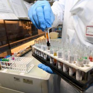 """Amalia Bruni, la ricercatrice che scoprì il gene dell'Alzheimer: """"Per il mio Centro niente più fondi"""""""