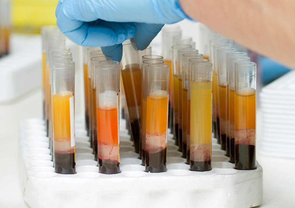 Coronavirus, allo Spallanzani sperimentazione con plasma di pazienti ex Covid
