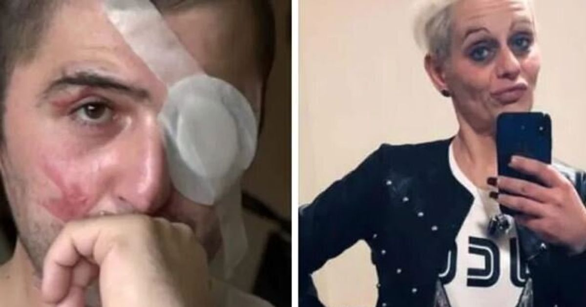 Sara Del Mastro condannata a 7 anni e 10: aggredì l'ex Giuseppe Morgante con l'acido a Legnano