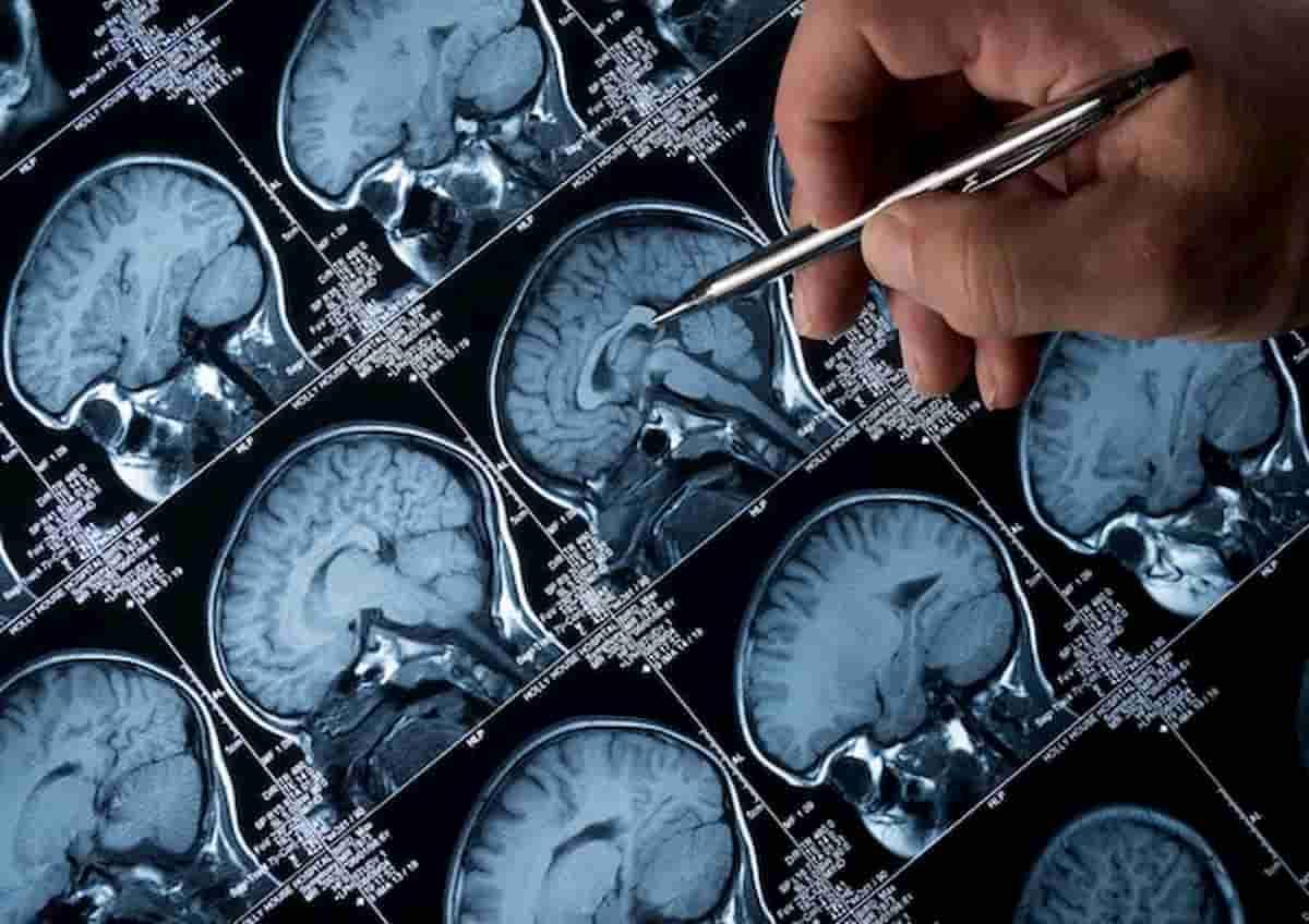 Il pensiero negativo persistente aumenta il rischio di malattie collegate alla demenza
