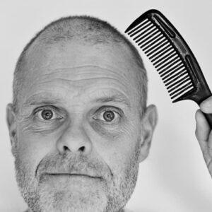 Trapianto capelli low cost in Turchia: rimane calvo e con cicatrici