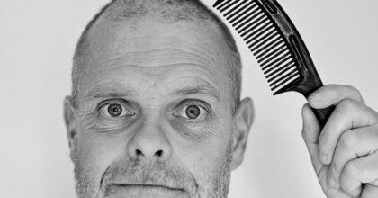 """Coronavirus: chi ha perso i capelli, i """"pelati"""", si ammala di più? Ormoni maschili punto debole"""