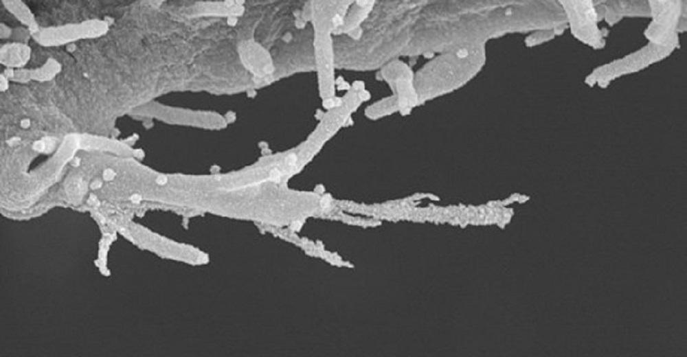 """Coronavirus """"zombifica"""" cellule e crea tentacoli per diffondersi nel corpo"""