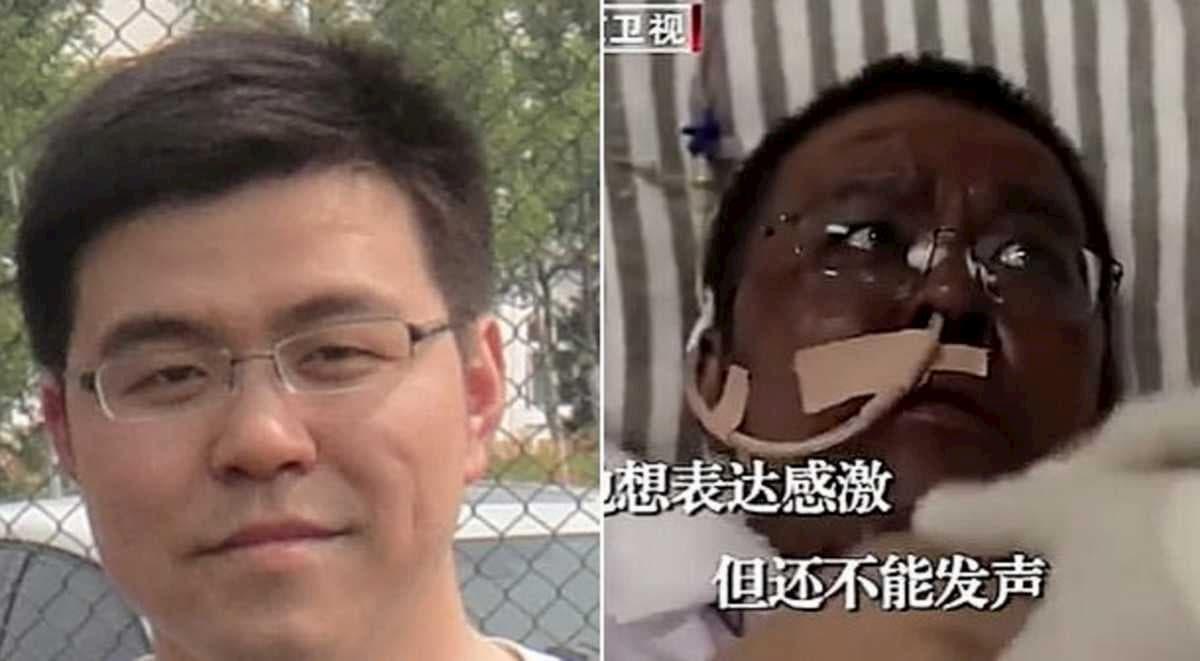 Wuhan, morto il medico la cui pelle diventò nera per la cura contro il coronavirus