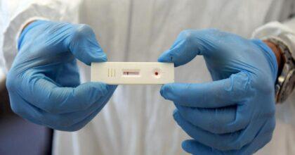 Le Iene, test sierologico ai parlamentari. Prestigiacomo positiva, ha avuto il Coronavirus. Ma tampone negativo