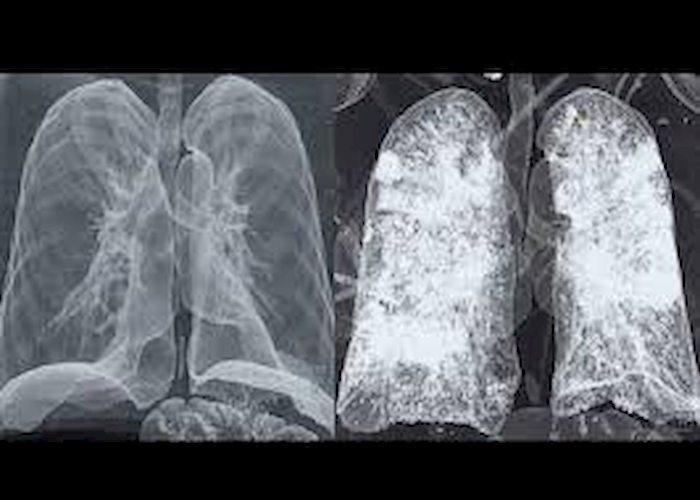 """Coronavirus, Gianluigi Nuzzi pubblica Tac polmoni: """"Foto da mostrare a chi fa ancora il pirla"""""""
