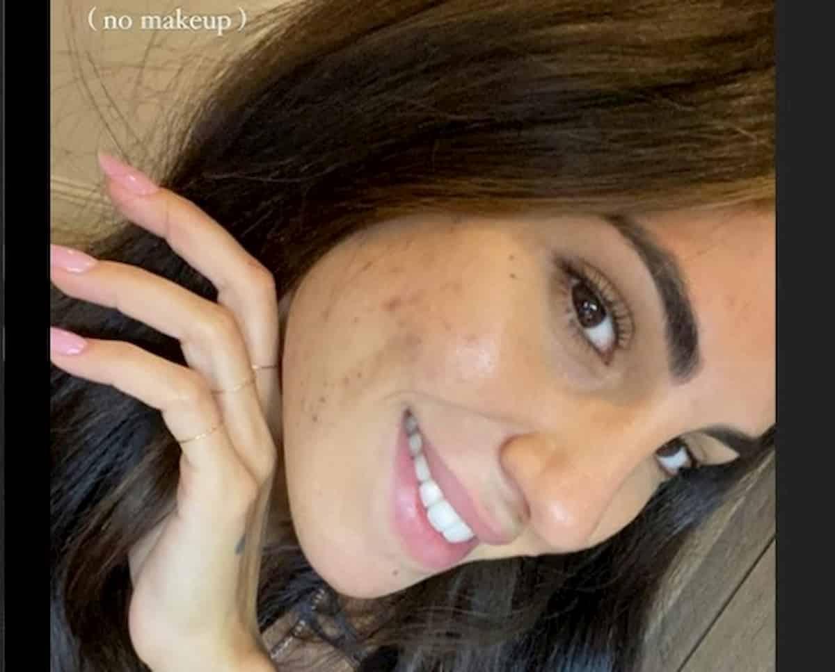 Giulia De Lellis mostra l'acne su Instagram