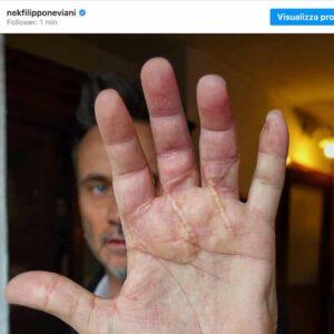 Nek, cosa ha fatto alla mano: la foto con la cicatrice dopo l'incidente con la sega circolare