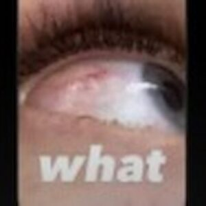 """Jasmine Carrisi lancia l'allarme su Instagram: """"Mi sono rotta l'occhio. Aiuto"""", ecco cosa è successo in realtà..."""