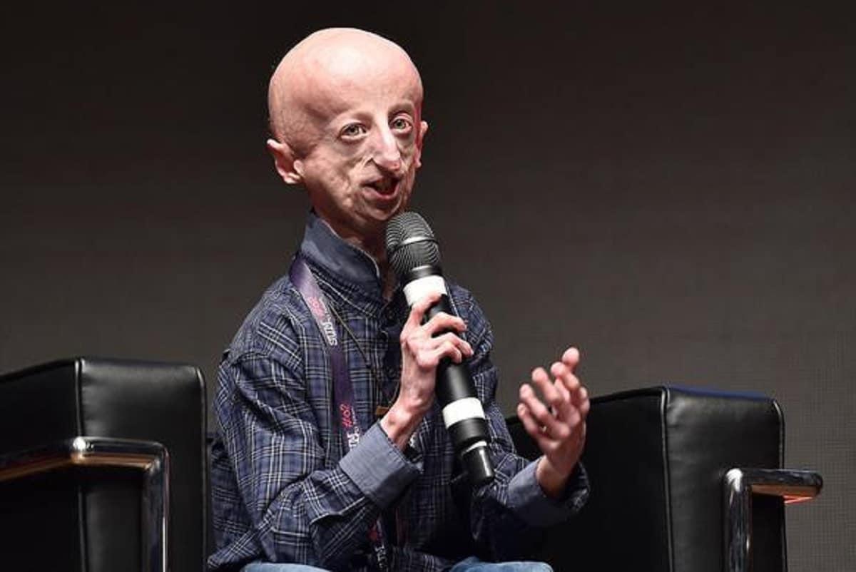 Sammy Basso chi è, malattia, progeria, quanti anni ha, mamma, fidanzata, famiglia, biografia