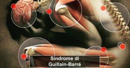 Vaccino AstraZene sindrome Guillain-Barré