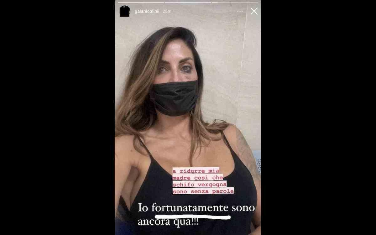 """Guendalina Tavassi pubblica foto con occhio nero su Instagram e poi la cancella. La figlia: """"Come l'hanno ridotta..."""""""