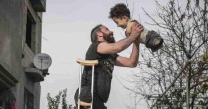 Mehmet Aslan, la foto simbolo della guerra in Siria: bambino senza gambe né braccia e il padre mutilato