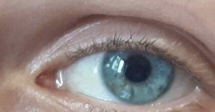 Trapianto di cornea addio: presto possibile una iniezione di cellule endoteliali. La sperimentazione negli Usa